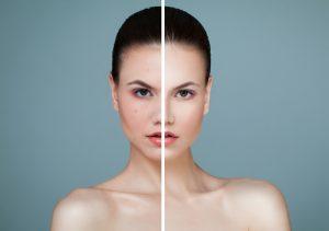 Beauty laser behandeling Kampen