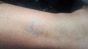 Oude tattoo verwijderen met laser 2