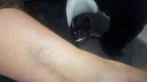 Oude tattoo verwijderen met laser 3