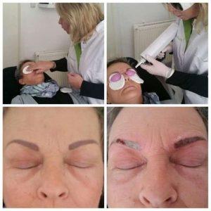 Permanente Make Up verwijderen