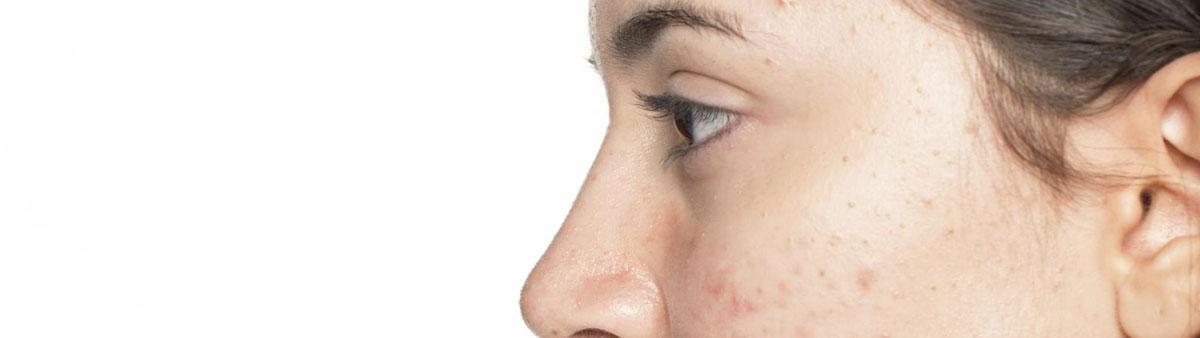 acne laserbehandeling