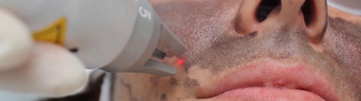 Carbon Laser Peeling behandeling Kampen